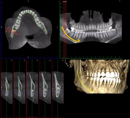 radiografías 3D Clínica dental Antonio Lucena