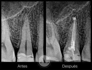 endodoncia-que-conlleva