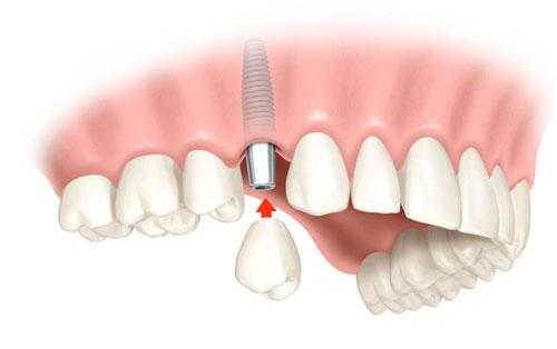 dientes en un día Antonio Lucena