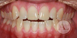 Tratamiento de ortodoncia Clínica Priego de Córdoba