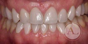 Carillas de cerámica Clínica Dental Antonio Lucena