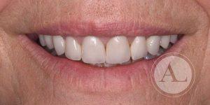 Textura del esmalte dental Antonio Lucena