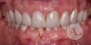 Ortodoncia invisible Clínica Antonio Lucena
