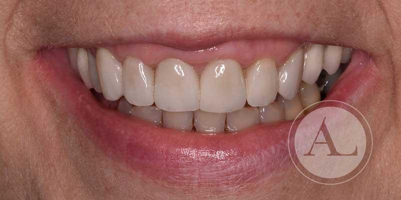 tratamiento con coronas de zirconio