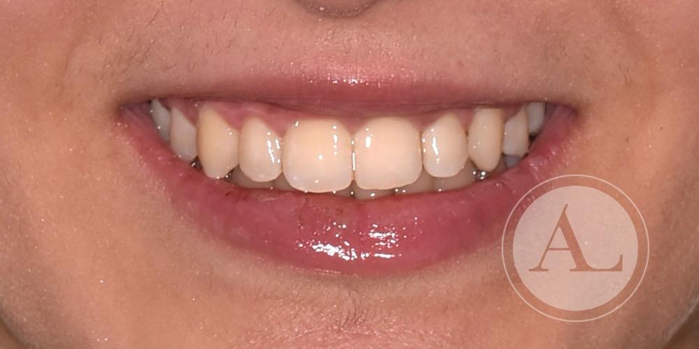 Mejora de estética dental en Clínica Antonio Lucena