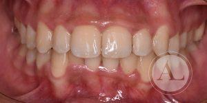 caso de ortodoncia en paciente adulto