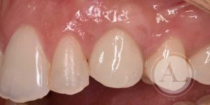 Implante dental Córdoba