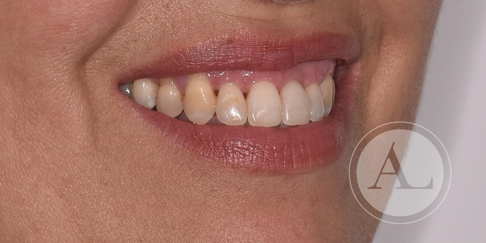 Resultado tratamiento de ortodoncia Antonio Lucena