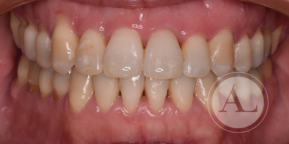 Tratamiento periodontal en paciente adulta Antonio Lucena