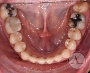 Caso tratamiento de ortodoncia Antonio Lucena