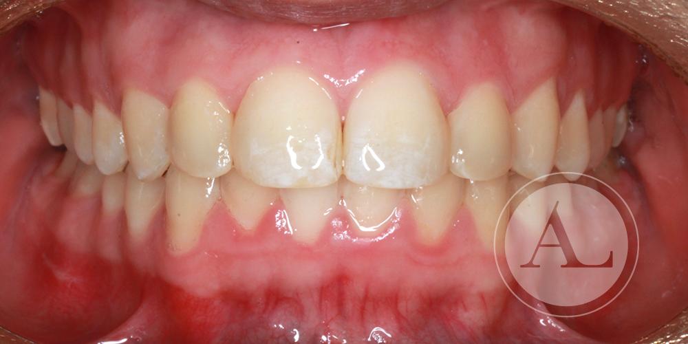 restauración estética de dientes anteriores Antonio Lucena
