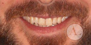 Apiñamiento dentario inferior