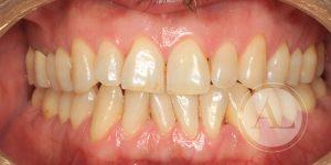 Apiñamiento dental solución