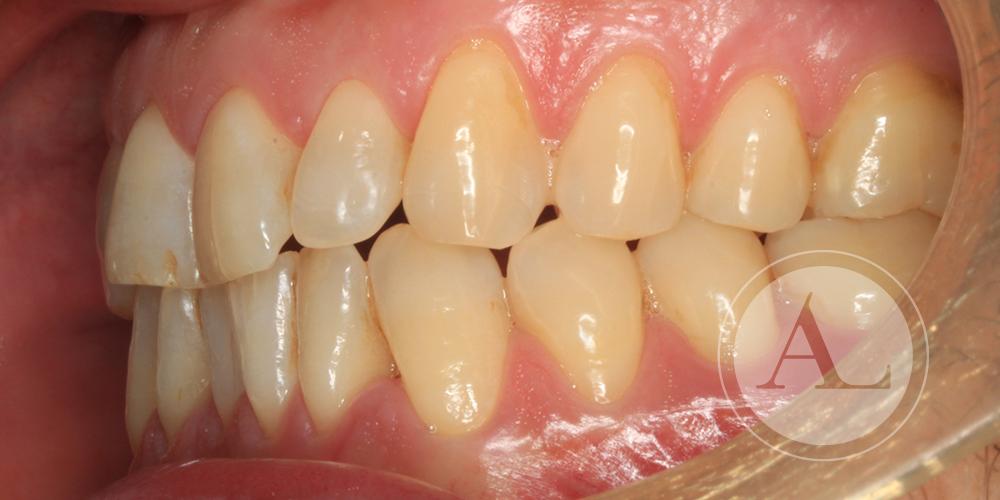 Apiñamiento dental solución Córdoba