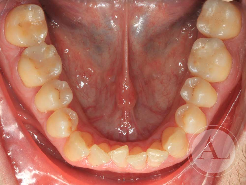 Diagnóstico previo clínica dental Córdoba