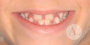 Ortopedia dentofacial Córdoba Antonio Lucena
