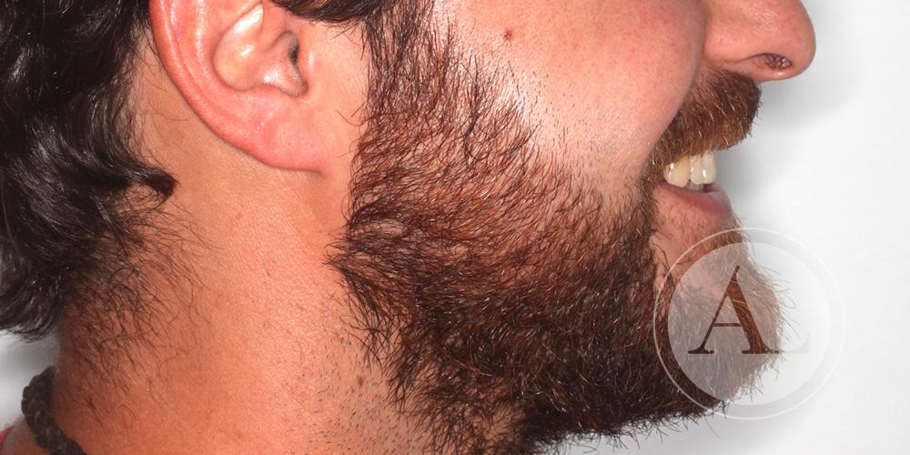 Tratamiento de ortodoncia en paciente adulto
