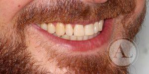 Correcta mordida tras ortodoncia Antonio Lucena