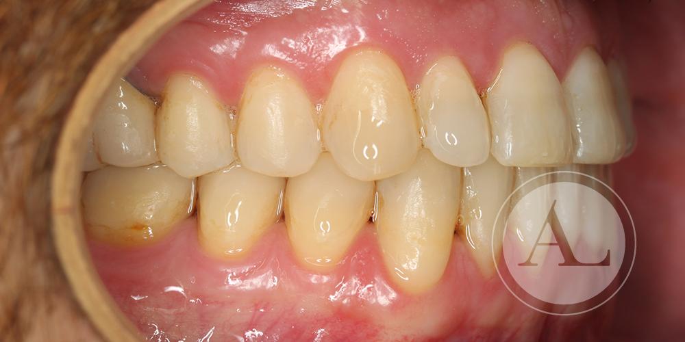 Ortodoncia para solucionar apiñamiento dental Antonio Lucena