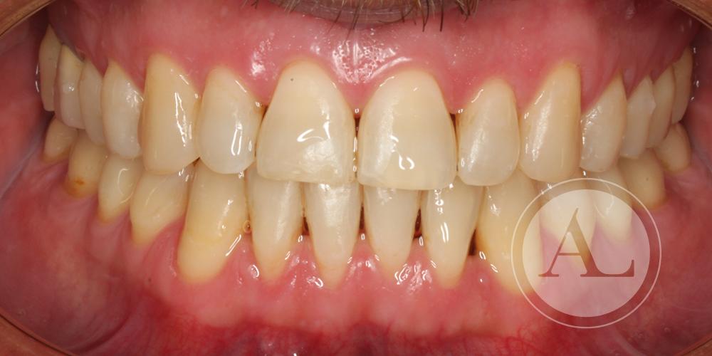 Solución de apiñamiento dental Córdoba