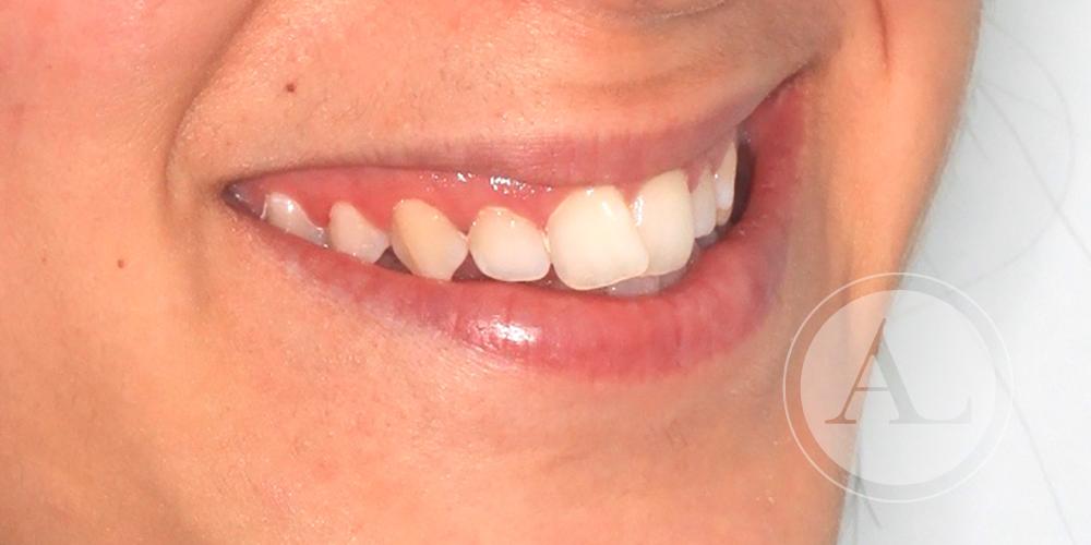 Tratamiento dental clínica Antonio Lucena
