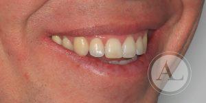 Ortodoncia en Clínica Dental Antonio Lucena