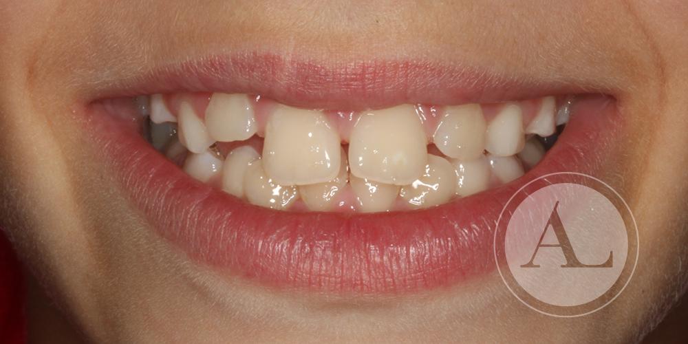 Primera fase del tratamiento ortopedia dentofacial