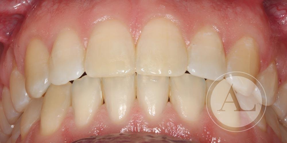 Finalización de tratamiento ortodoncia