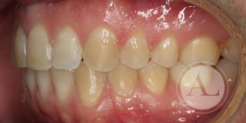 Ortodoncia Clínica Dental Antonio Lucena