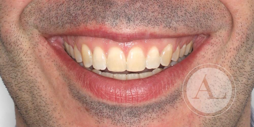 Ortodoncia para corregir la función masticatoria
