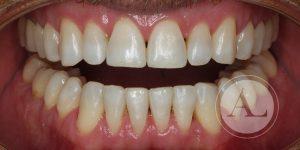 Blanqueamiento dental Clínica Antonio Lucena