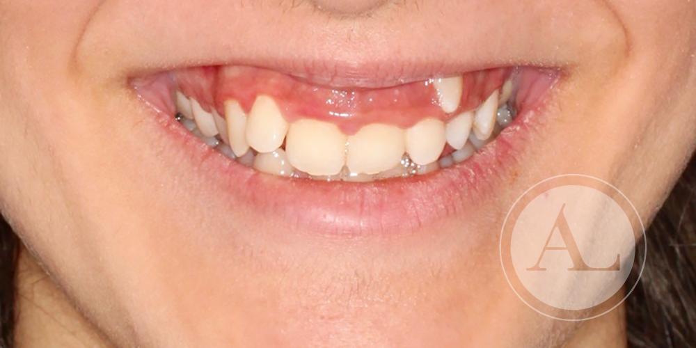 Ortodoncia en clínica Antonio Lucena