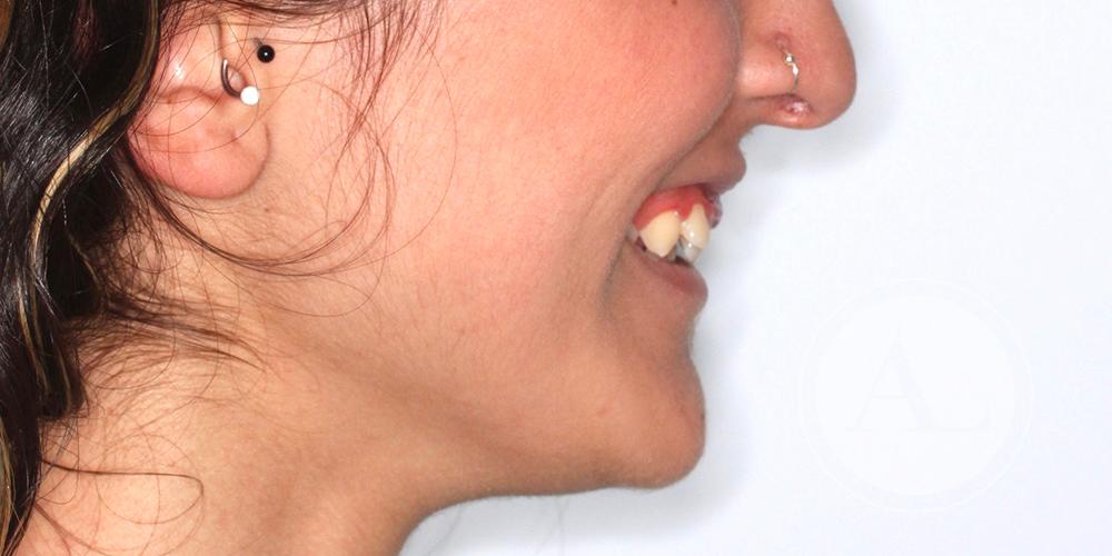 Ortodoncia en paciente adulta