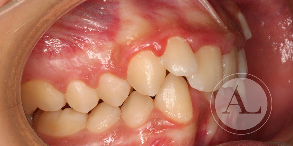 Caso de ortodoncia en adulto