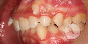 Mejora de la estética dental Antonio Lucena