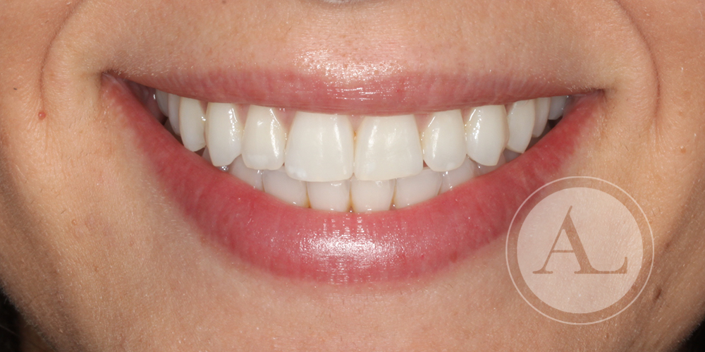 Ortodoncia con brackets de zafiro en Clínica Dental Antonio Lucena