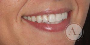 Blanqueamiento dental en Clínica Dental Antonio Lucena