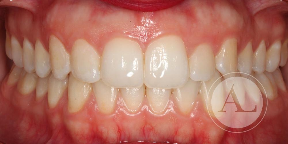 Resultado de ortodoncia Antonio Lucena