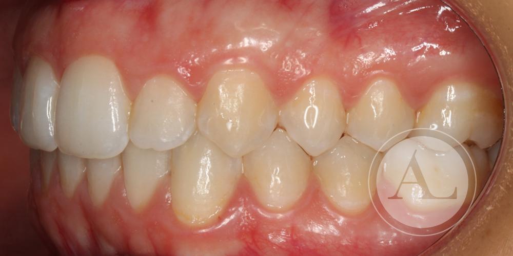 Tratamiento de ortodoncia Córdoba