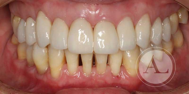 tratamiento ortodoncia Córdoba