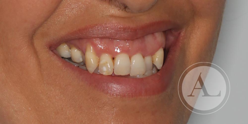 Caso de ortodoncia en paciente adulta