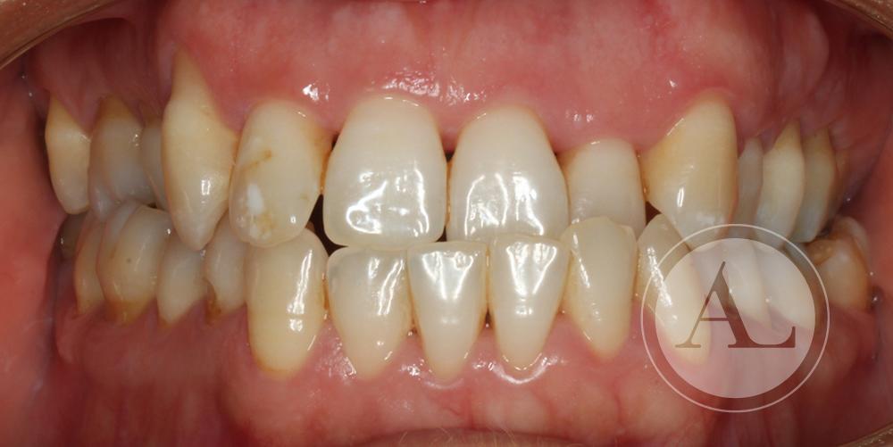 Ortodoncia en paciente adulta Antonio Lucena