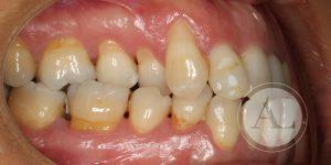 Tratamiento periodontal Clínica Dental Córdoba