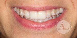 Tratamiento de ortodoncia transparente