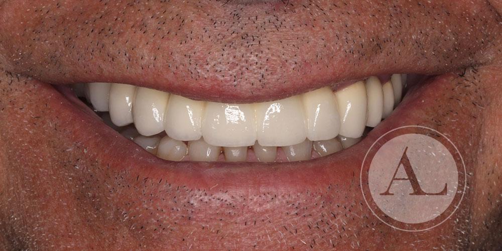 rehabilitación oral completa Clínica Antonio Lucena