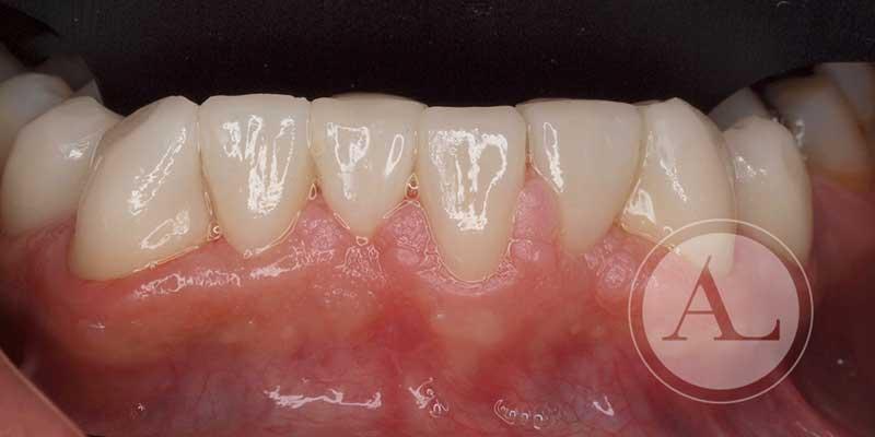 Carillas en mandíbula fin del tratamiento Antonio Lucena
