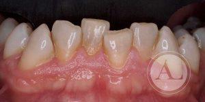 Carillas en mandíbula inicio del tratamiento Antonio Lucena