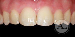 microestética dental Ortodoncia