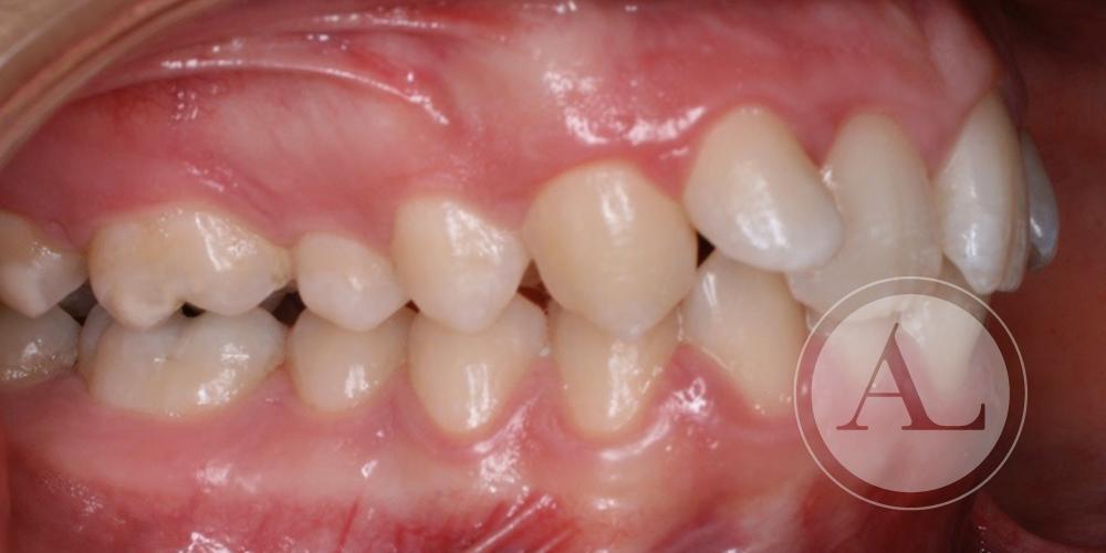 Mejora de posición de dientes superiores