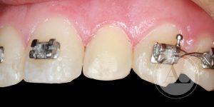 microestética dental Antonio Lucena